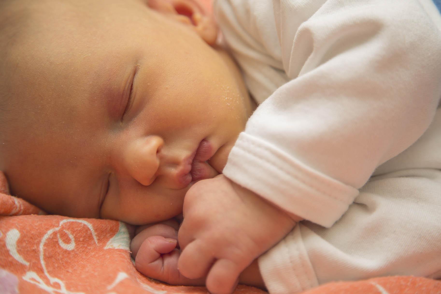 neonato affetto da ittero dorme tranquillo