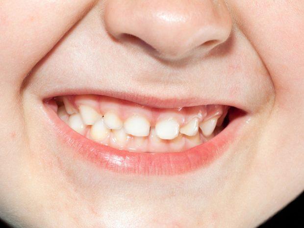 primo piano di bambino che digrigna i denti