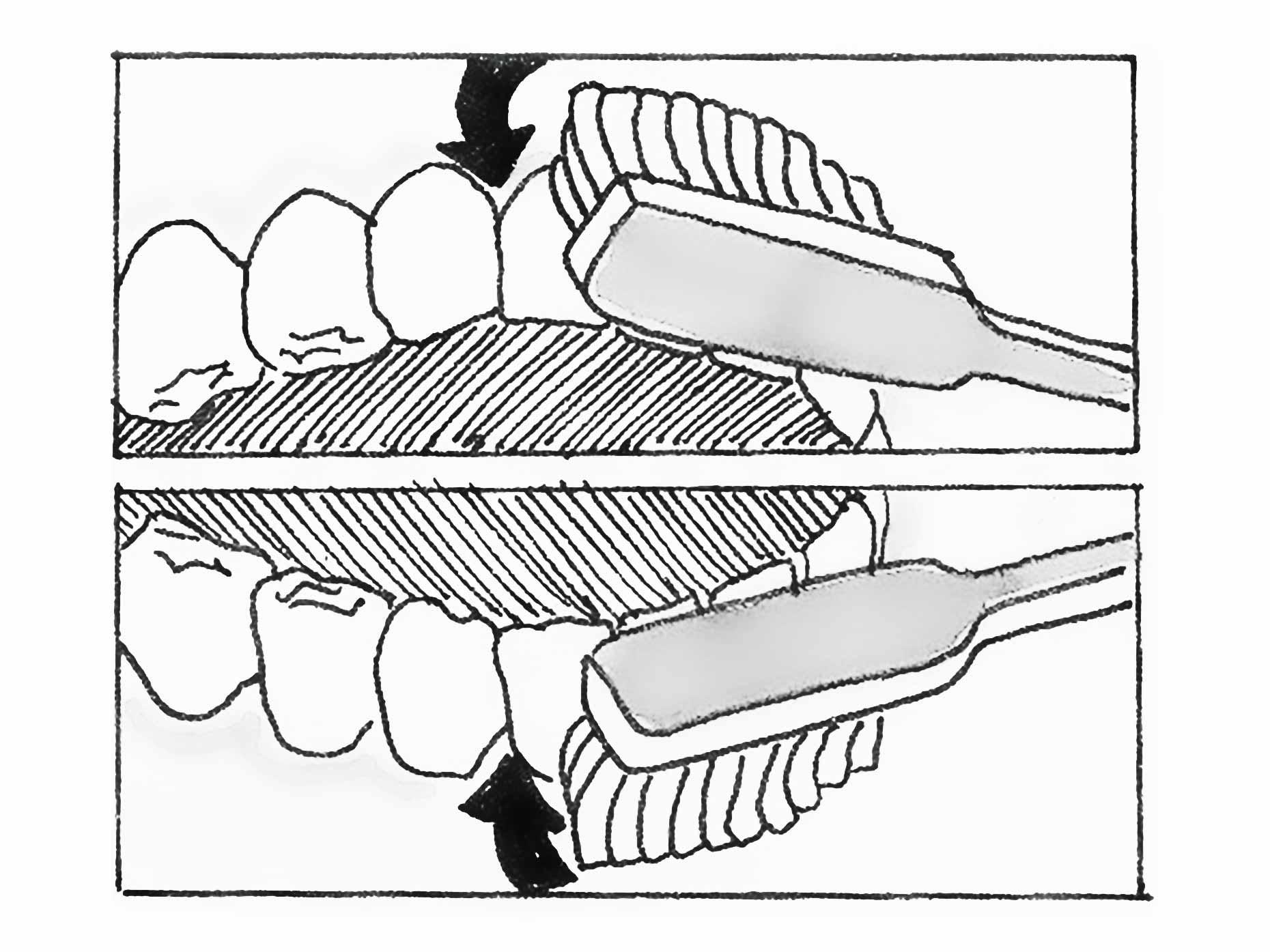 disegno che mostra il giusto utilizzo dello spazzolino