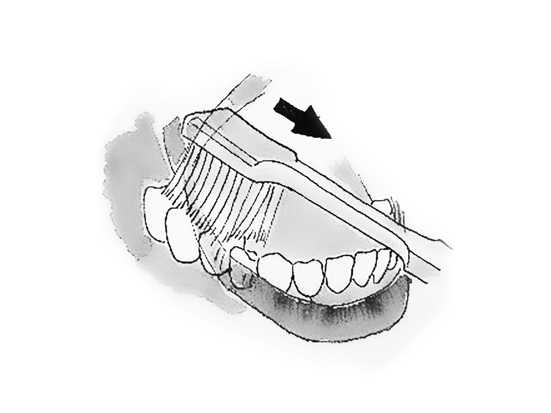 figura mostra la corretta pulizia dei denti posteriori