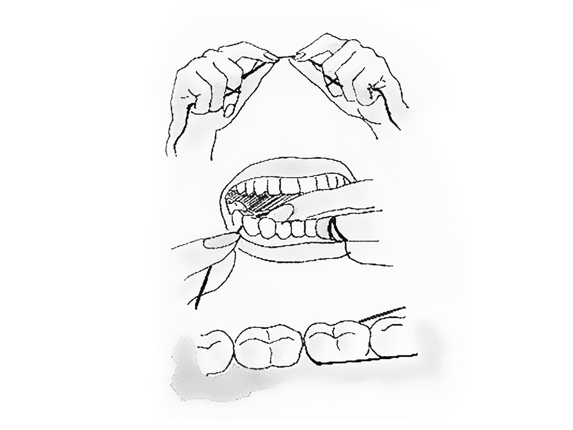 figura mostra come utilizzare correttamente il filo interdentale