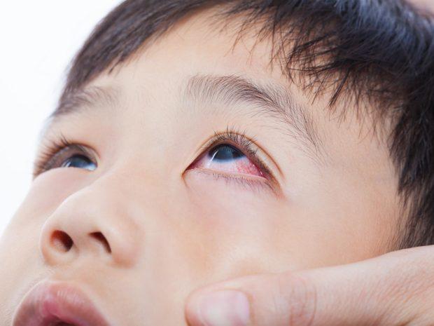 occhi di un bambino asiatico con congiuntivite allergica