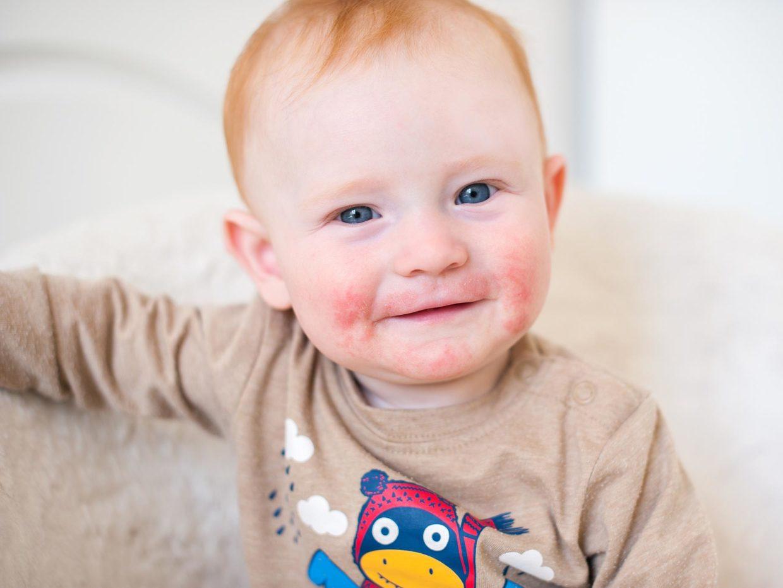volto di bambino con irritazione alla pelle dovuta a dermatite atopica