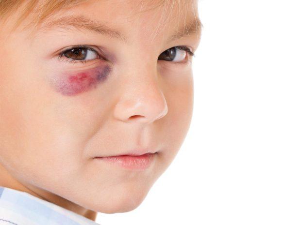 volto di ragazzino con livido sotto l'occhio