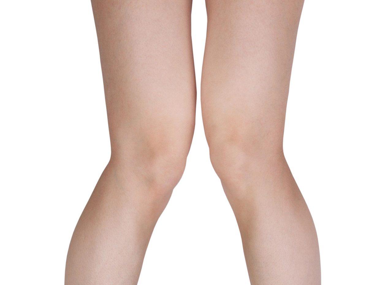 gambe di bambino con ginocchio ad x