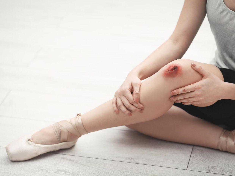 gamba di ballerina con ferita al ginocchio