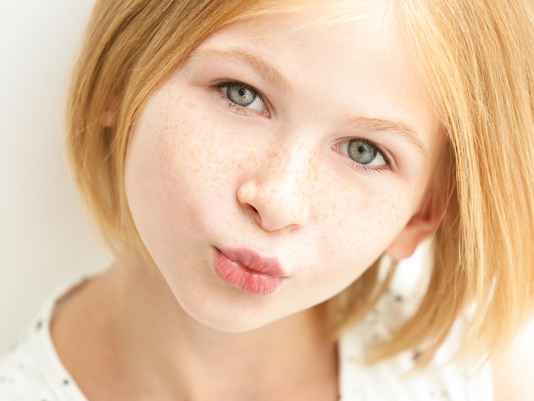 La fototerapia da pigmentary nota su risposte di faccia