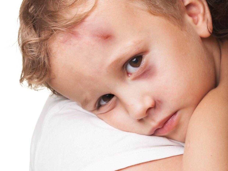 bambino con lividi nella fronte e sotto l'occhio