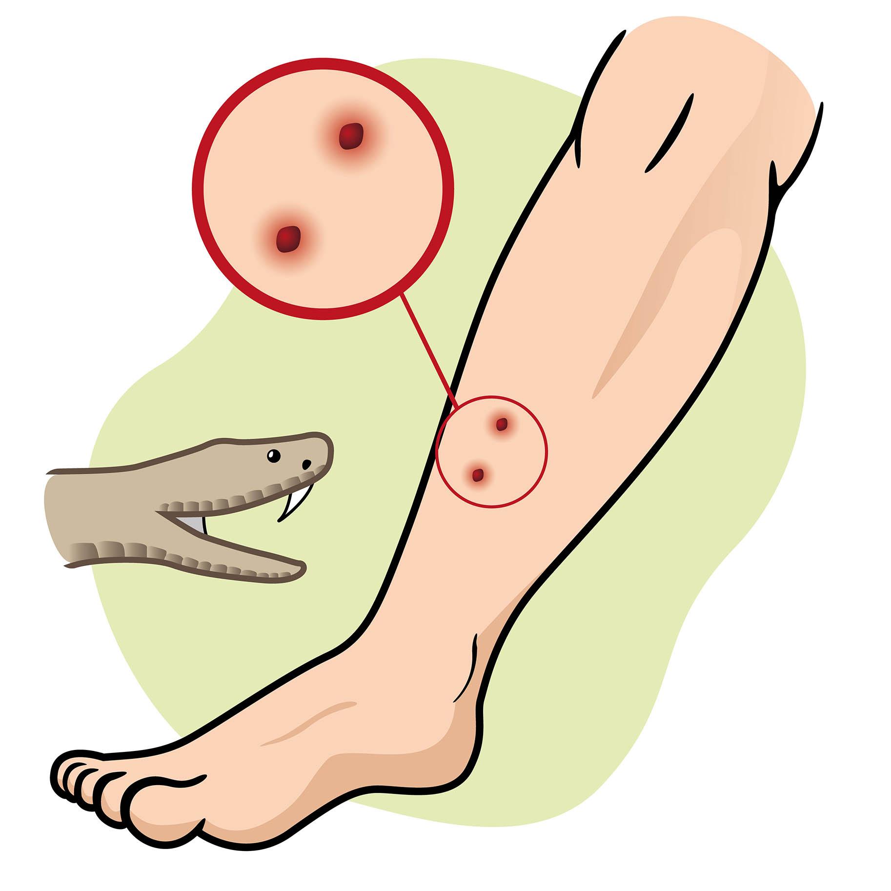 immagine che mostra le caratteristiche del morso della vipera su una gamba