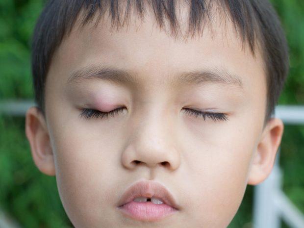 bambino con orzaiolo all'occhio destro
