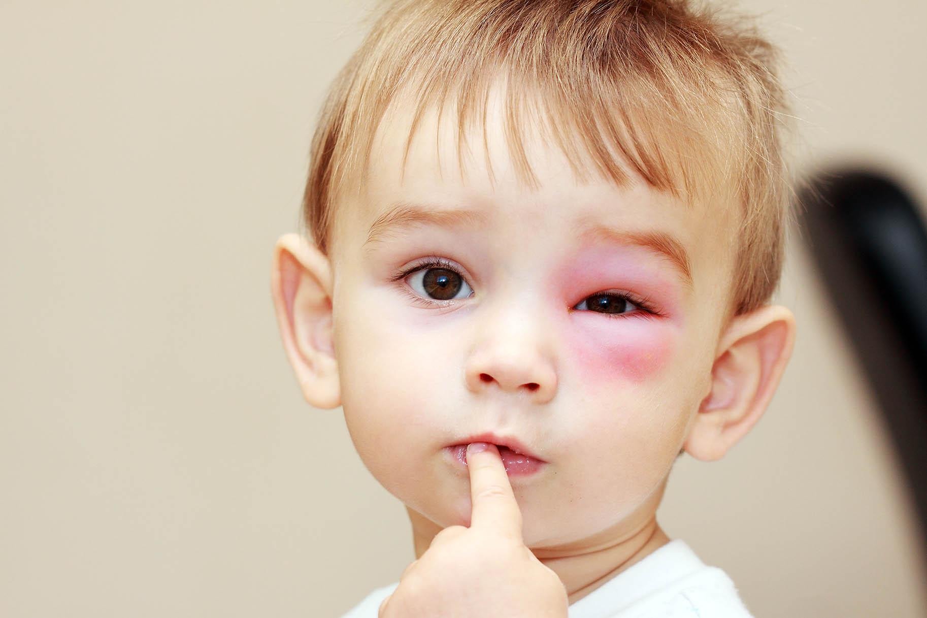 bambino con reazione allergica rigonfiamento vicino l'occhio