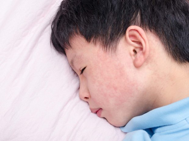 bambino con puntini rossi nelle guance coricato nel letto