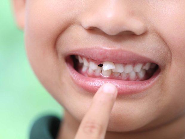 bambino indica il suo dente che sta per cadere