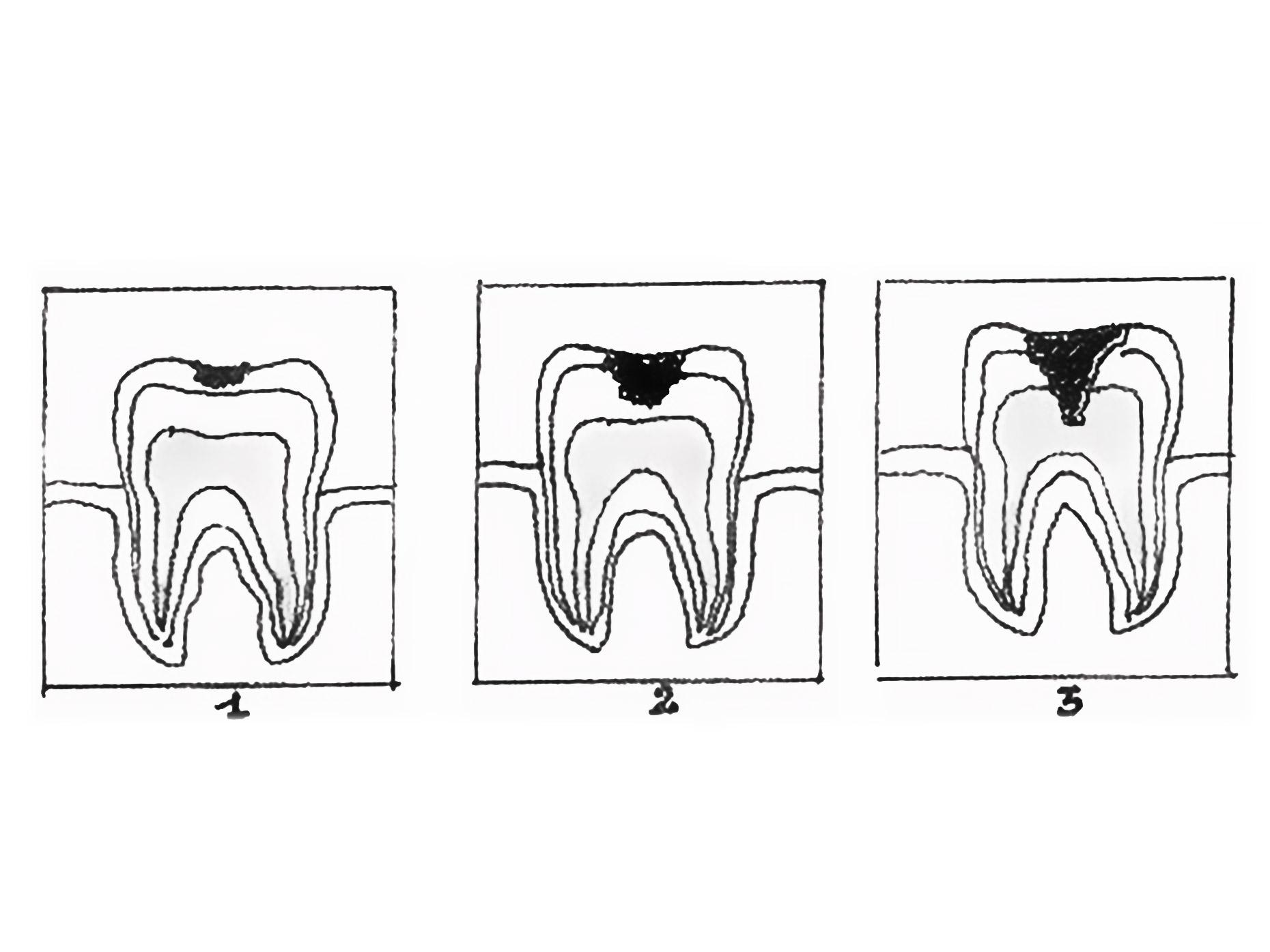 disegno che ritrae l'avanzamento delle carie nei denti