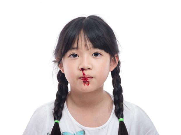 perdita di sangue dal naso di una bambina asiatica con le trecce