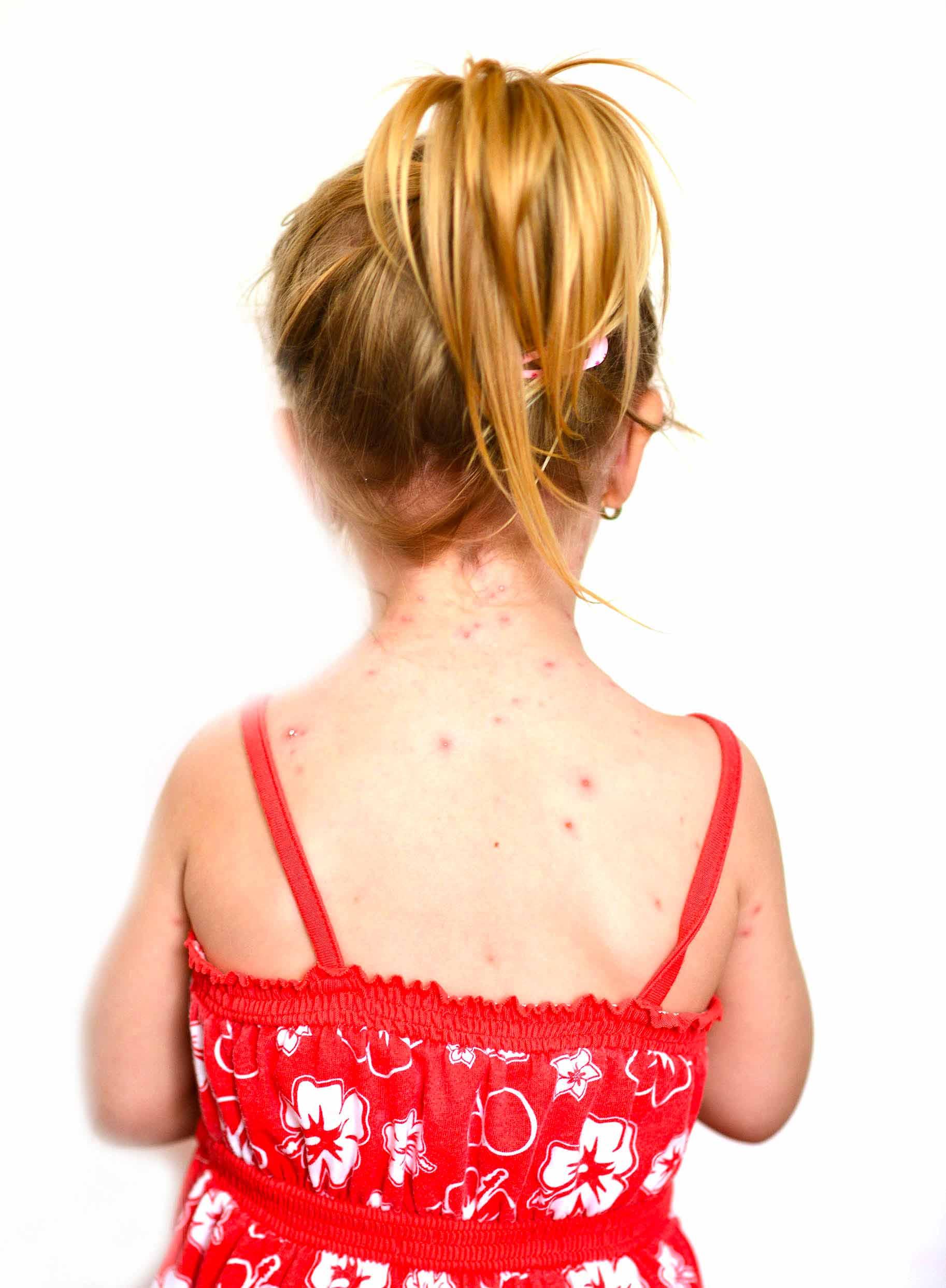 schiena di bambina affetta da varicella