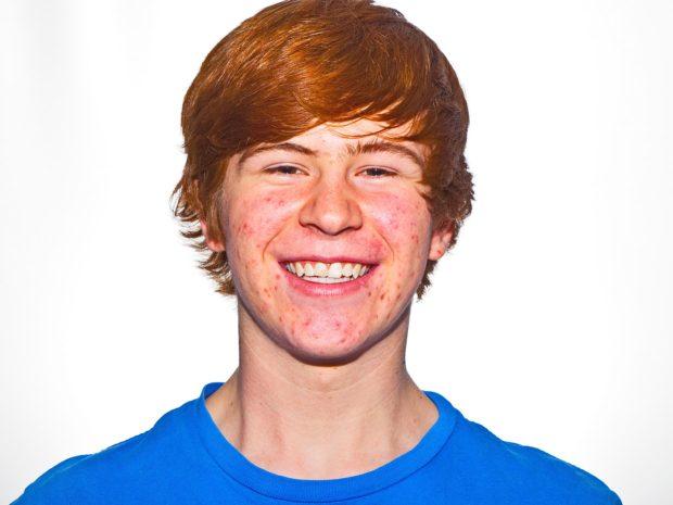 volto di ragazzo adolescente con acne