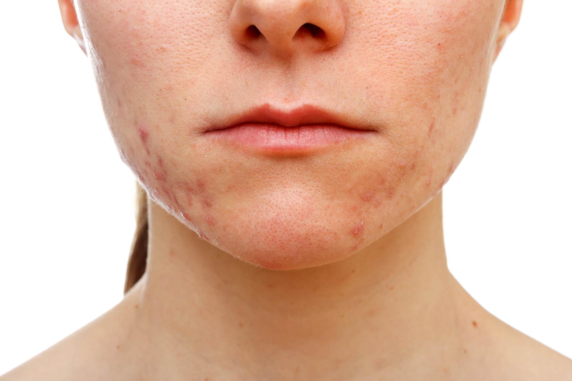 volto di ragazza affetta da acne giovanile