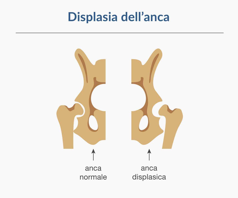 immagine che mostra la differenza delle giunzioni ossee nel caso di anca normale e anca displasica